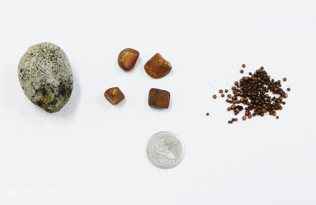 ▲ 다양한 크기의 담석들