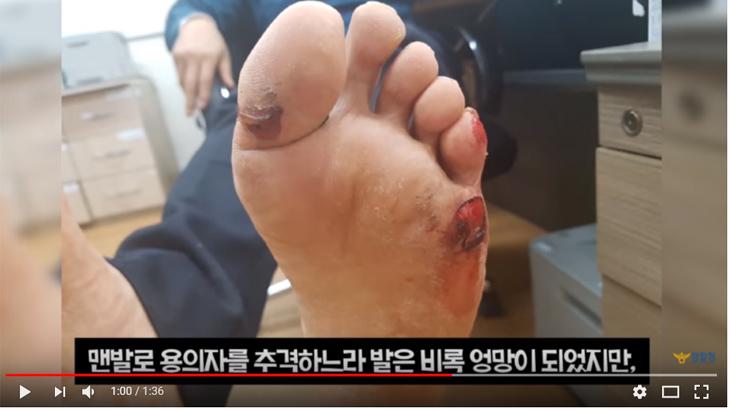 맨발로 3km달려 범인잡은 경찰관! 발은 만신창이